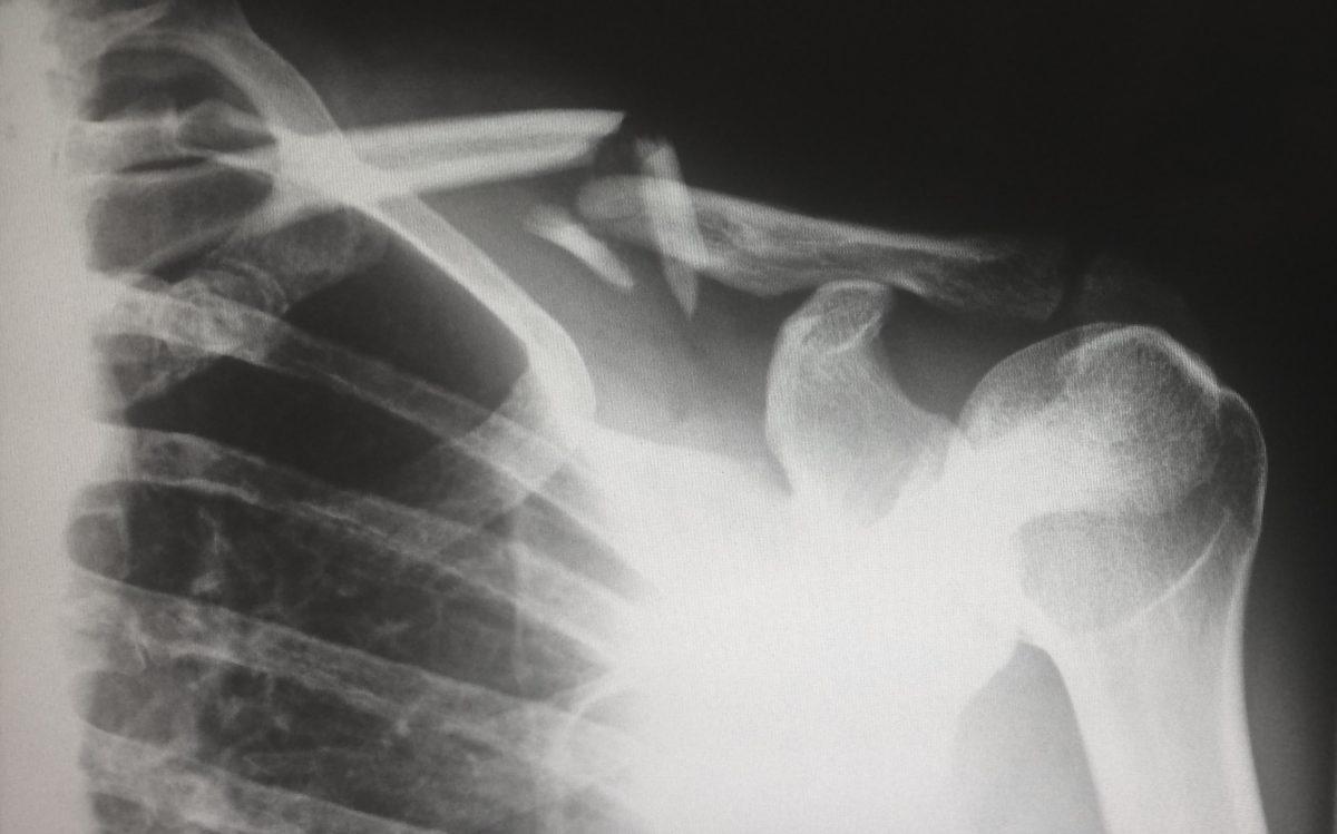 Złamana kość