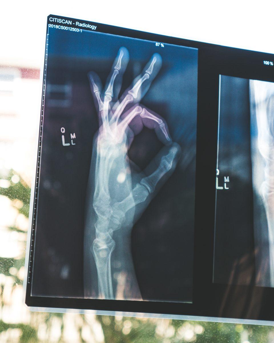 Zdjęcie rentgenowskie